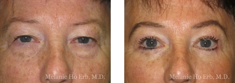 Patient 01 Lower Lid Female Dr. Erb