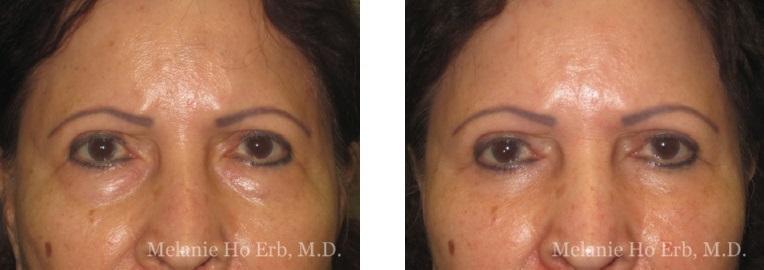 Patient 02 Lower Lid Female Dr. Erb