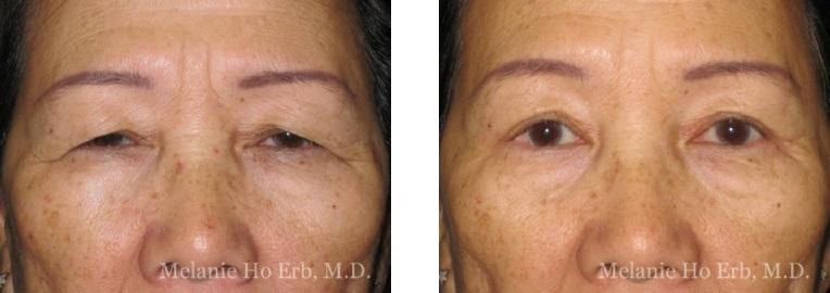 Patient 4 Asian Blepharoplasty Dr Ho Erb MD