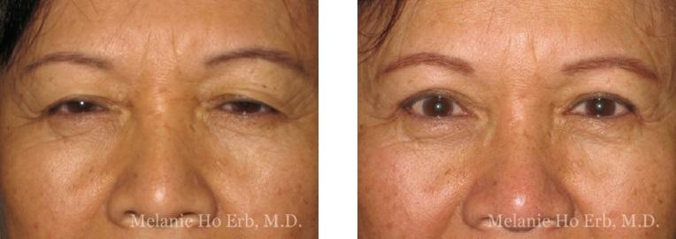 Patient 6 Asian Blepharoplasty Dr Ho Erb MD