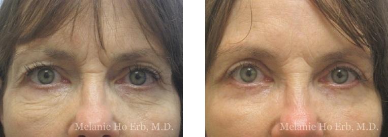 Patient 10 Lower Lid Female Dr. Erb