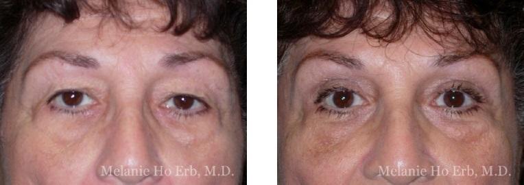 Patient 10 Female Upper Lid Blepharoplasty Dr Erb