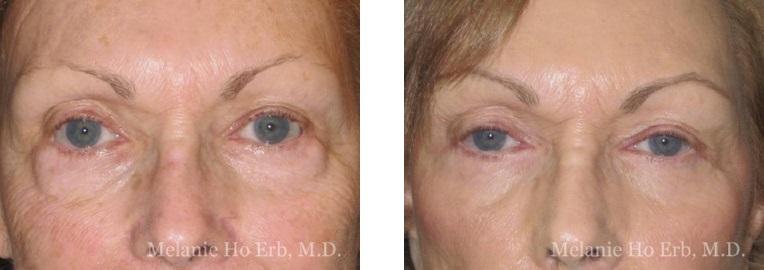 Patient 21 Lower Lid Female Dr. Erb