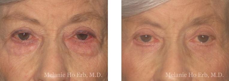 Patient 22 Lower Lid Female Dr. Erb