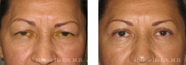 Patient 30 Female Upper Lid Blepharoplasty Dr Erb