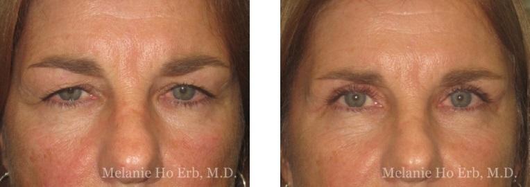 Patient 31 Female Upper Lid Blepharoplasty Dr Erb