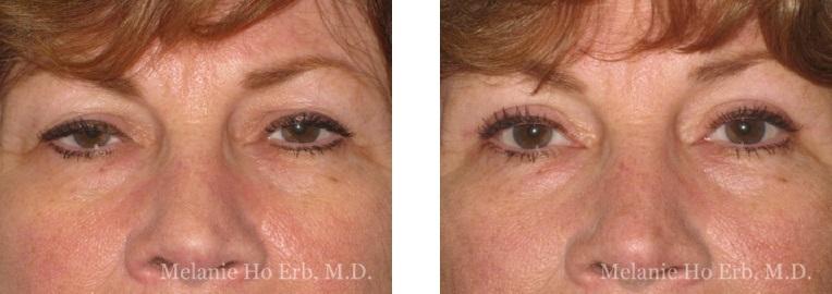 Patient 40 Female Upper Lid Blepharoplasty Dr Erb