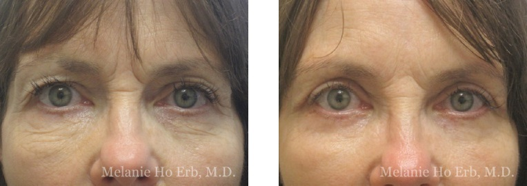 Patient 45 Female Upper Lid Blepharoplasty Dr Erb