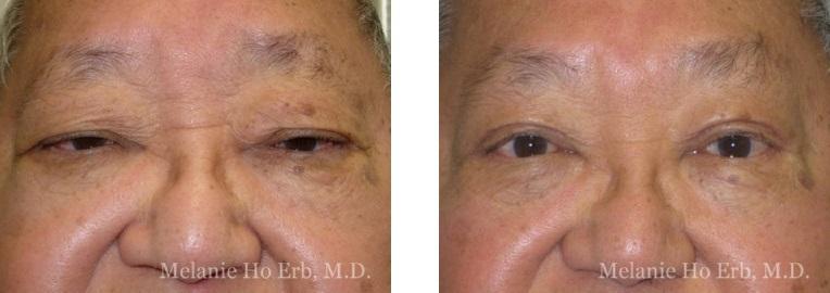 Patient 51 Asian Blepharoplasty Dr Ho Erb MD