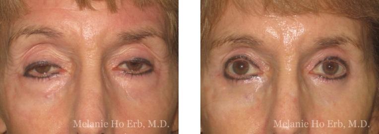 Patient 5 Ptosis Repair Dr. Erb