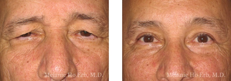 Before and After Brow Lift Melanie Ho Erb, M.D.