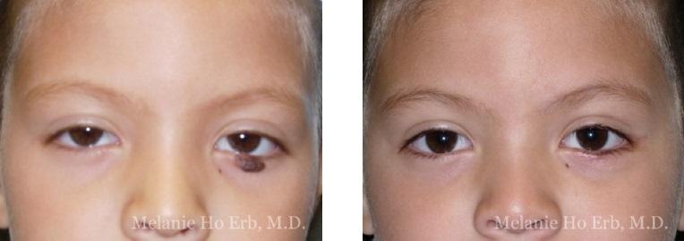 Patient a Neoplasia Dr. Erb