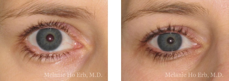 Patient b3-4 Neoplasia Dr. Erb