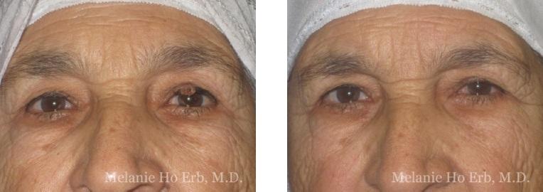 Patient c Neoplasia Dr. ERb