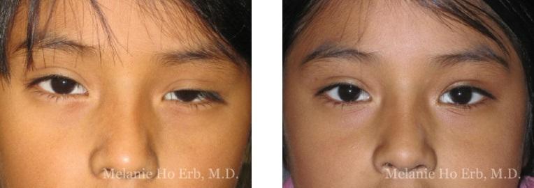 Patient b Pediatric Eyes Dr. Erb