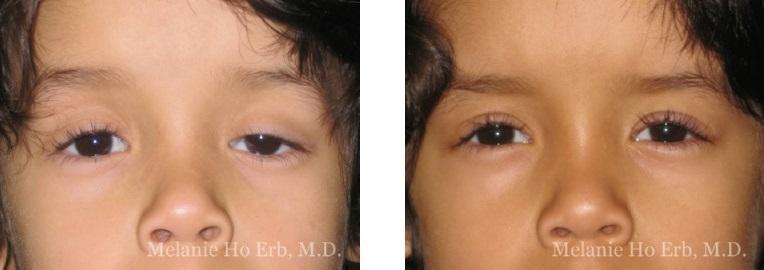 Patient c Pediatric Eyes Dr. Erb
