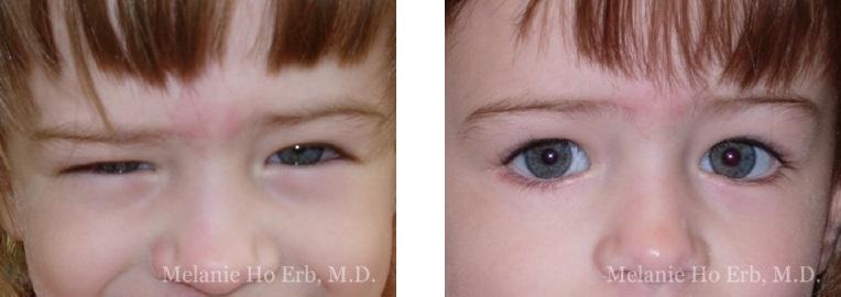 Patient e Pediatric Eyes Dr. Erb