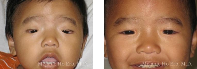 Patient g Pediatric Eyes Dr. Erb