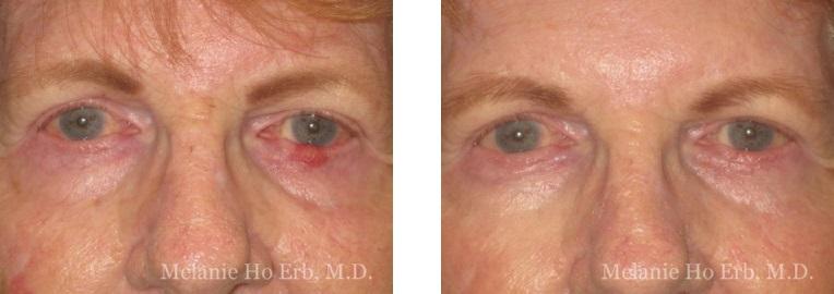 Patient D Neoplasia Dr. ERb