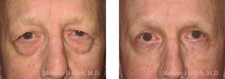 Patient c male Lower Lid Blepharoplasty Dr. Erb