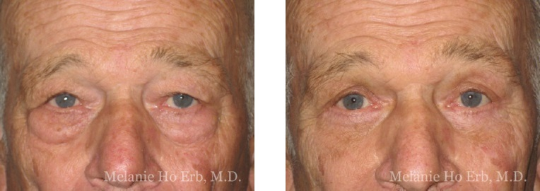 Patient d male Lower Lid Blepharoplasty Dr. Erb