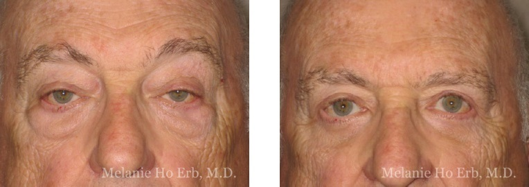 Patient e male Lower Lid Blepharoplasty Dr. Erb