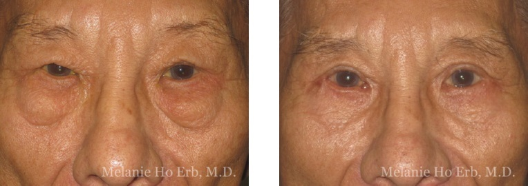 Patient x male Lower Lid Blepharoplasty Dr. Erb