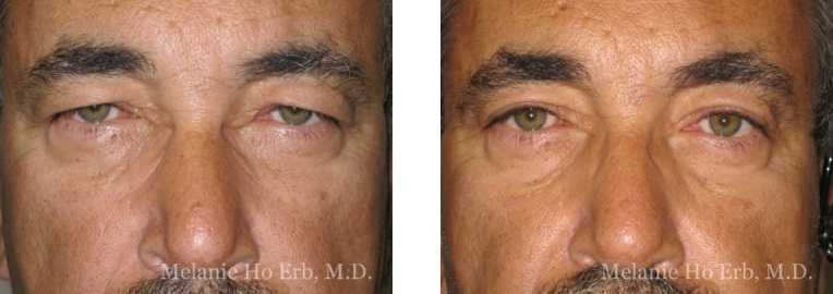 Patient f Upper Lid Male Before and After Dr. Erb