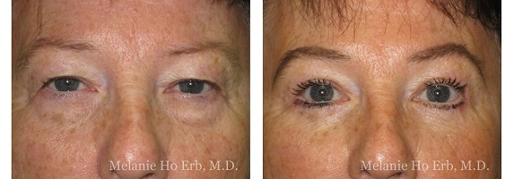 Cosmetic Eye Surgery Before and After conducted by Melanie Ho Erb, M.D.