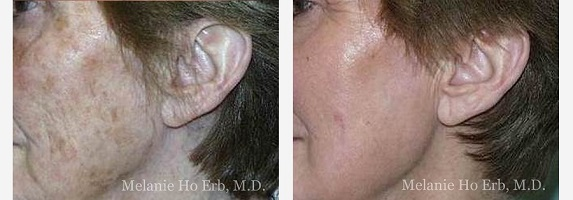 Laser Procedure Befor and After conducted by Melanie Ho Erb, M.D.