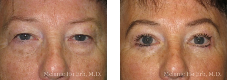 Patient 01 Female Upper Lid Blepharoplasty Dr Erb