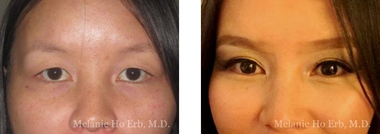 Patient 1 Asian Blepharoplasty Dr Ho Erb MD
