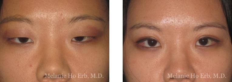 Patient 2 Asian Blepharoplasty Dr Ho Erb MD