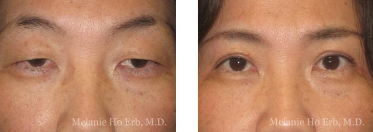 Patient 3 Asian Blepharoplasty Dr Ho Erb MD
