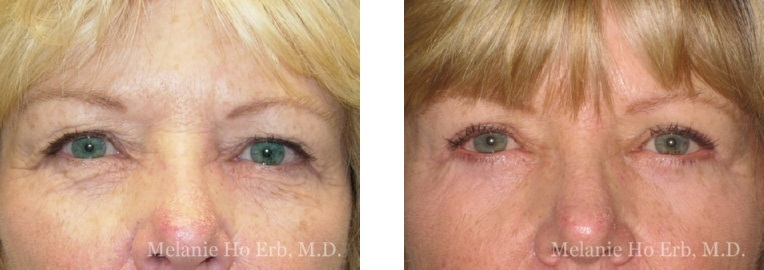 Patient 5 Female Upper Lid Blepharoplasty Dr Erb