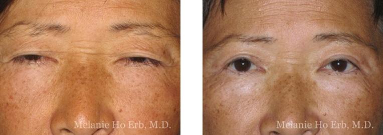Patient 7 Asian Blepharoplasty Dr Ho Erb MD