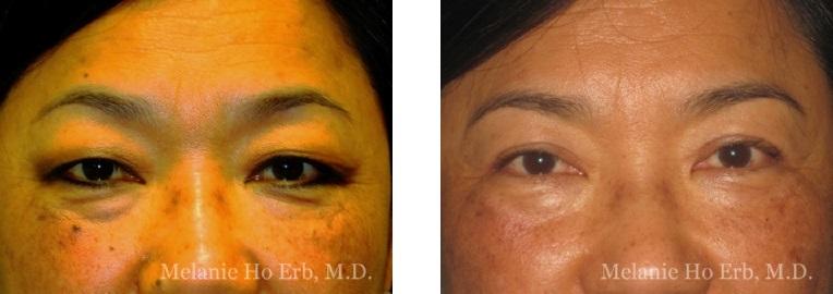 Patient 8 Asian Blepharoplasty Dr Ho Erb MD