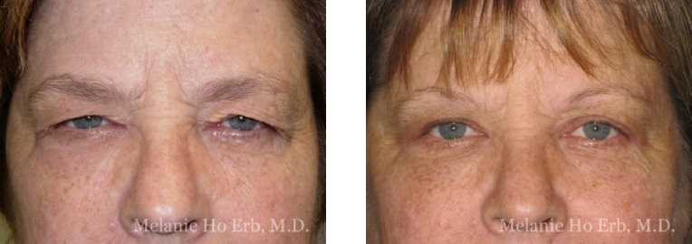 Patient 15 Female Upper Lid Blepharoplasty Dr Erb