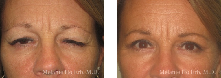 Patient 16 Female Upper Lid Blepharoplasty Dr Erb