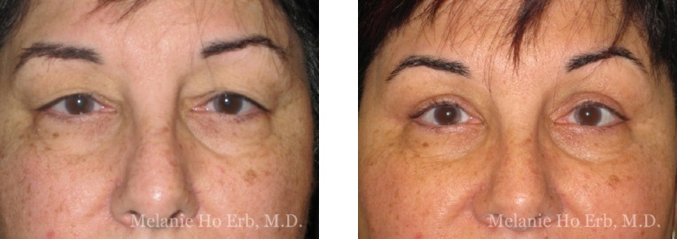Patient 20 Female Upper Lid Blepharoplasty Dr Erb