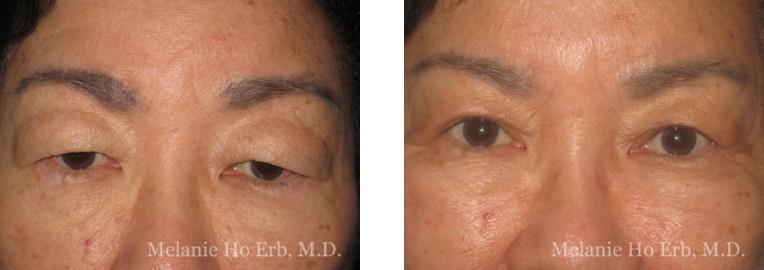 Patient 20 Asian Blepharoplasty Dr Ho Erb MD