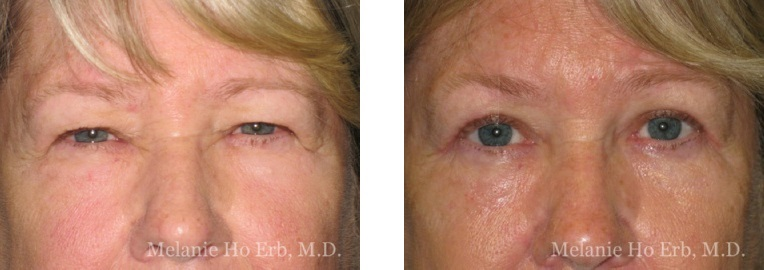 Patient 25 Female Upper Lid Blepharoplasty Dr Erb