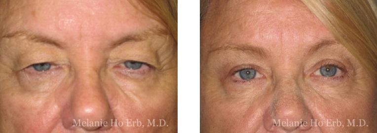 Patient 35 Female Upper Lid Blepharoplasty Dr Erb