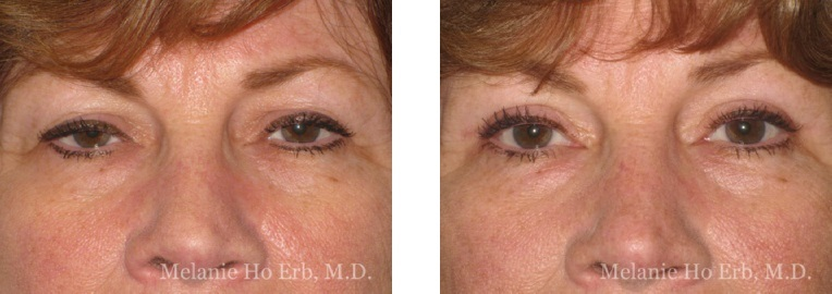 Patient 40 Female Upper Lid Blepharoplasty Dr Erb