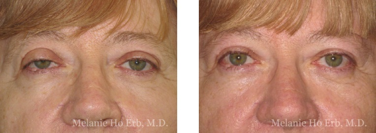 Patient 1 Ptosis Repair Dr. Erb