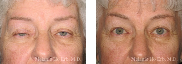 Patient 3 Ptosis Repair Dr. ERb