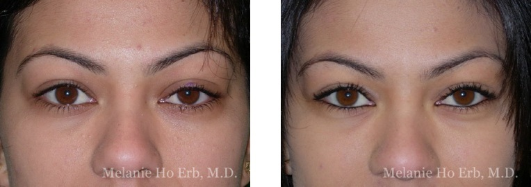 Patient 20 Ptosis Repair Dr. Erb