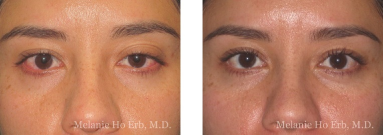 Patient 21 Ptosis Repair Dr. Erb