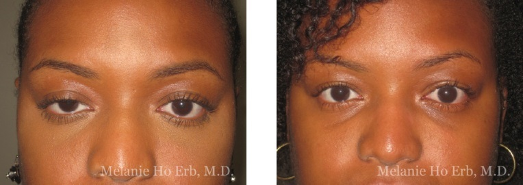 Patient 22 Ptosis Repair Dr. Erb