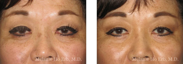 Patient 30 Ptosis Repair Dr. ERb